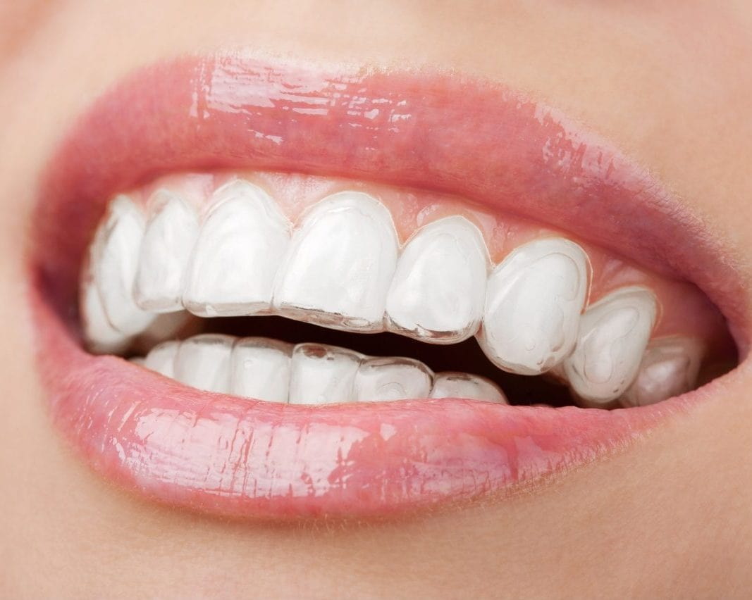 What will Smile Brite Dental provide if I decide to get Invisalign?